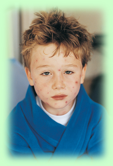 Child with chickenpox